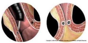 Iniezione sottomucosa di Enteryx e risultato della procedura