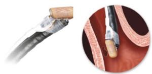 Elettrodo Stretta che esce dal canale operativo del gastroscopio