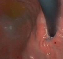 Collare Magnetico posizionato intorno alla giunzione esofago gastrica