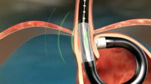 Sistema MUSE (Medigus Ultrasonic Surgical Endostapler)