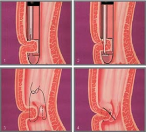 Procedura Endocinch